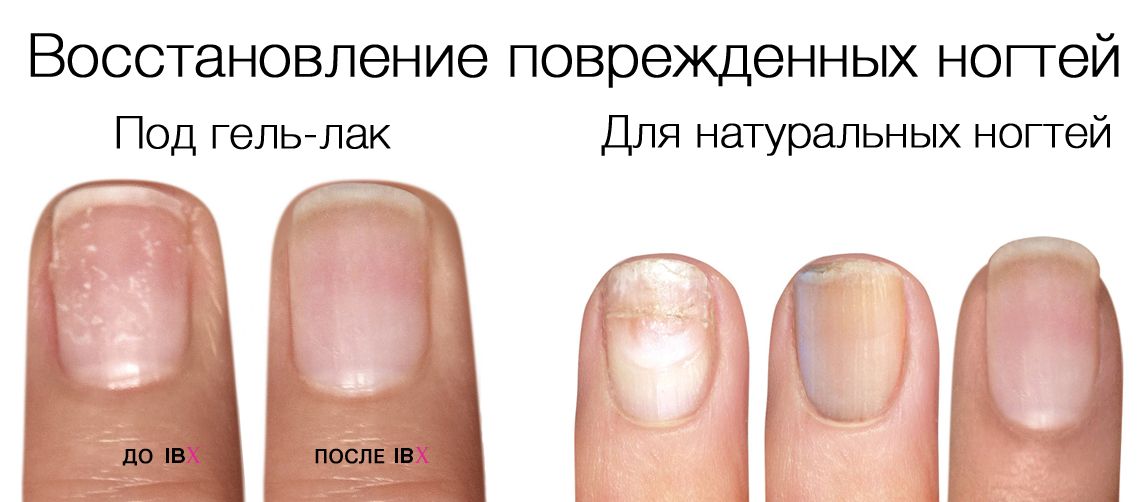 Укрепление ногтевой пластины гелем в домашних условиях