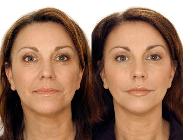 Лицо до и после процедуры коррекции носослёзных борозд и тёмных кругов под глазами