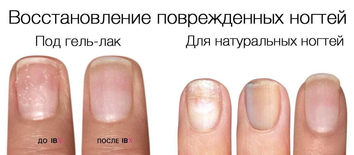 Система укрепления натуральных ногтей